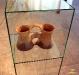 Біноклеподібна посудина
